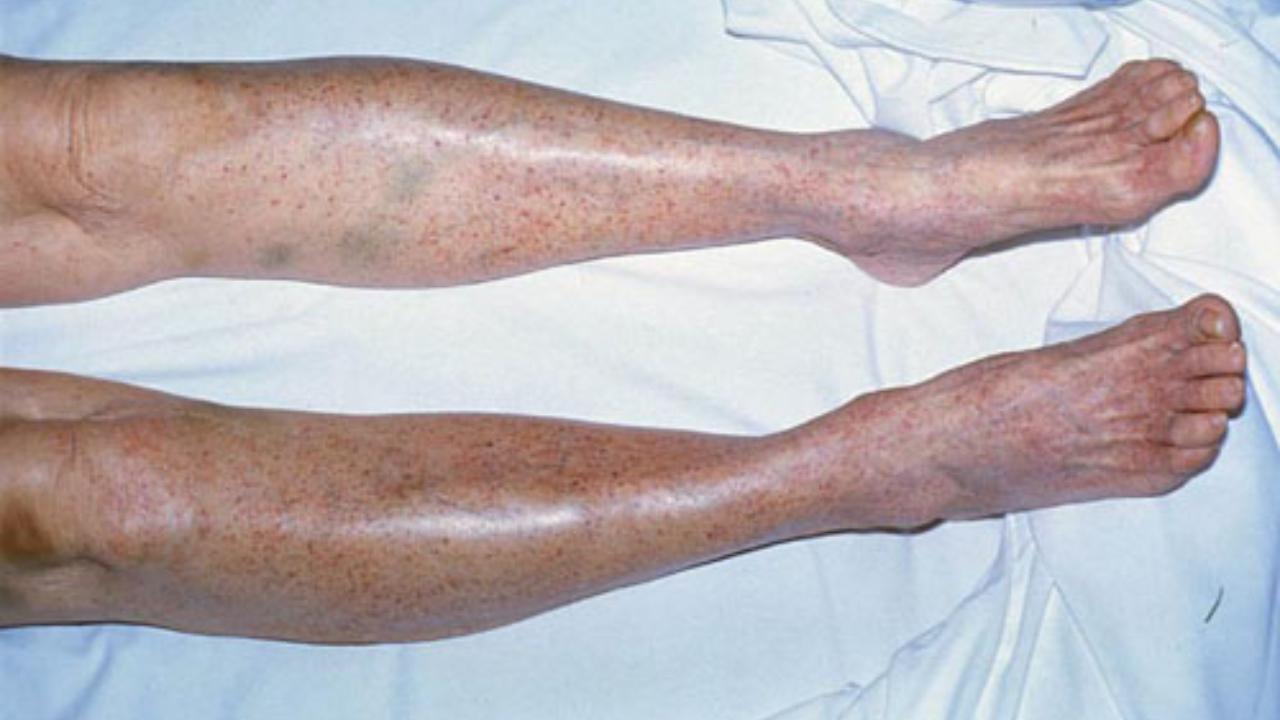 piastrinopenia-autoimmune